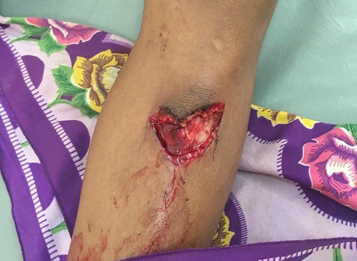 Vết thương khá sâu và dễ bị nhiễm trùng.