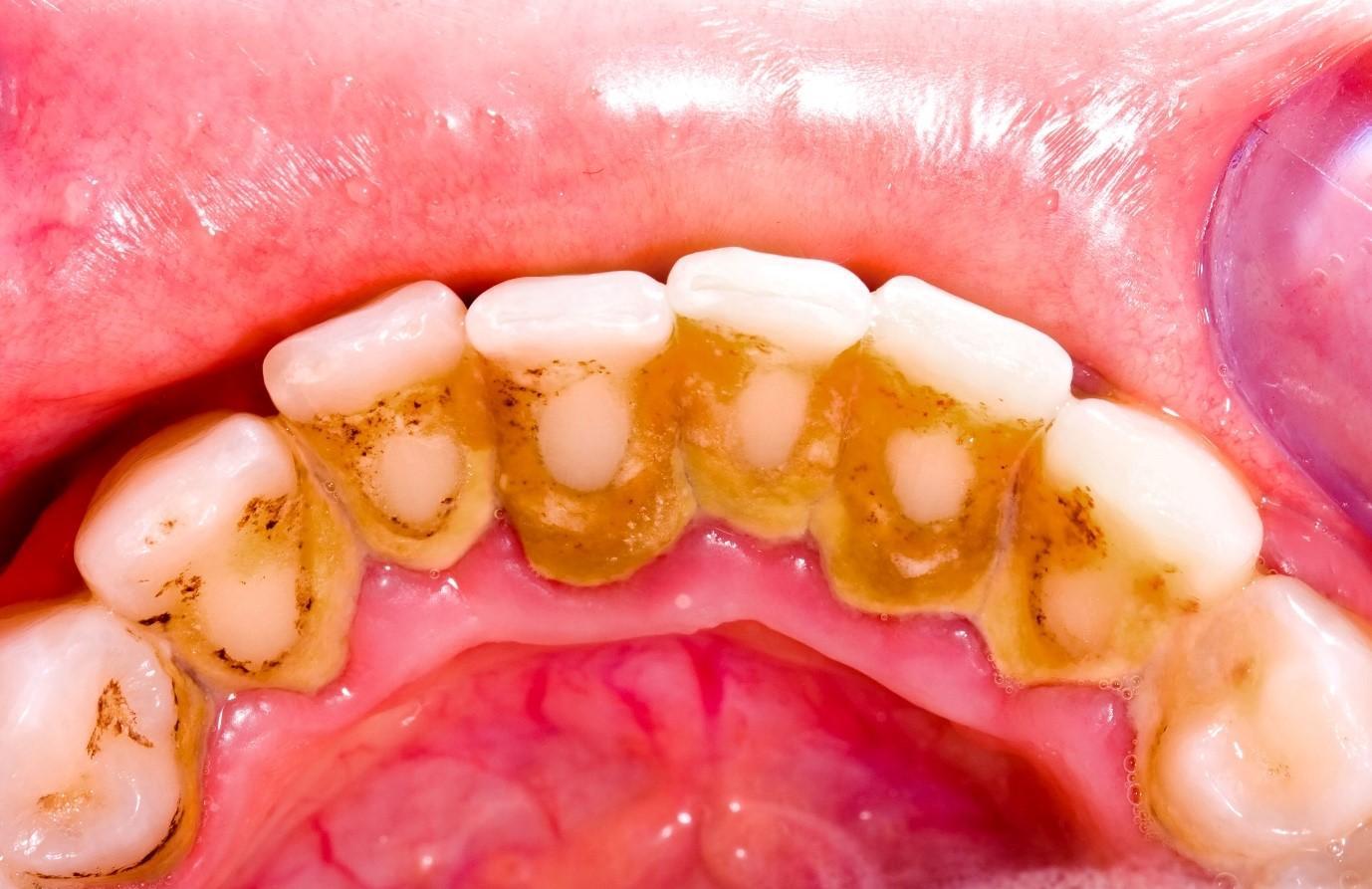 Cao răng là một trong những nguyên nhân gây bệnh ở lợi và quanh răng.