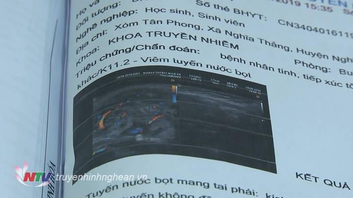Kết quả chụp siêu âm của bệnh nhi.
