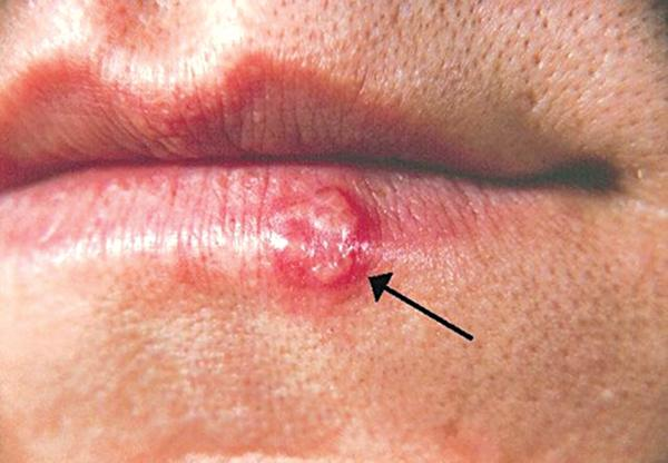 Trẻ em thường dễ bị nhiễm loại virus HSV-1 khi tiếp xúc với người lớn mang mầm bệnh