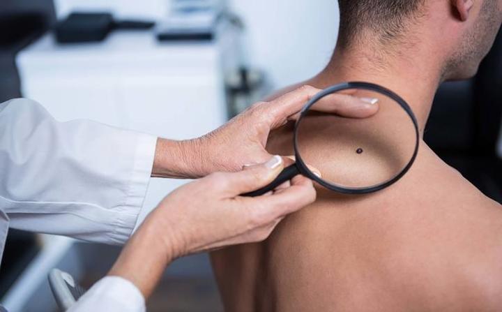 Thay đổi màu da: Khi thấy sự thay đổi trong kích thước, hình dạng, màu sắc của nốt ruồi hoặc các vết đốm lạ xuất hiện trên da, bạn hãy đi khám bác sĩ càng sớm càng tốt. Những vết đốm lạ mới xuất hiện rất có thể là dấu hiệu ban đầu của bệnh ung thư da.