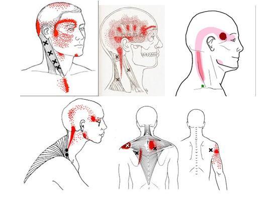 Bên cạnh chóng mặt bạn có thấy đau ở những điểm mà chúng tôi bôi đỏ trong hình không?