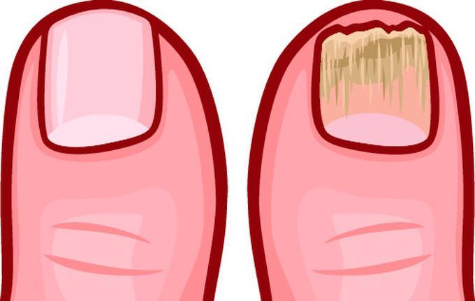 Móng chân xấu và dễ gãy  Trọng lực kéo chất độc xuống móng chân. Ngoài ra, mang giày và tất trong thời gian dài là môi trường thuận lợi để nấm cũng như vi khuẩn phát triển khiến móng chân tối màu, dễ gãy.