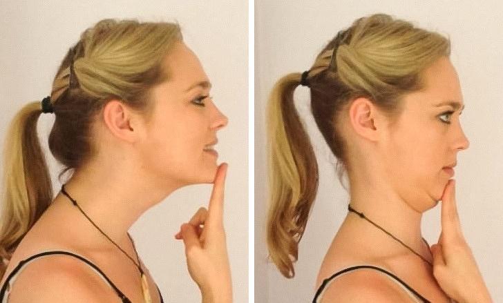 Bài tập cằm: Hãy ngồi thẳng lưng và ấn tay đẩy cằm về phía sau cho đến khi bạn thấy căng cơ và giữ nguyên trong vòng 5 giây. Thực hiện bài tập này 10 lần để giúp giảm sự chèn ép lên cột sống và giảm độ căng cơ ở cổ gáy.