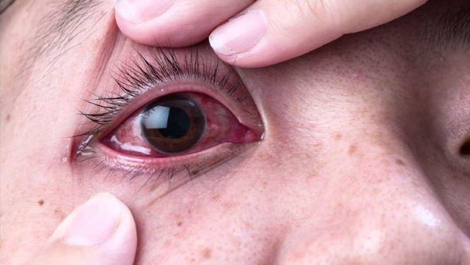 Biểu hiện của viêm kết mạc do virus.