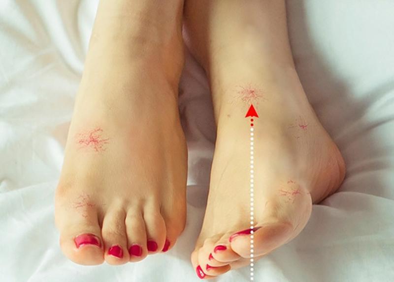 Bệnh gan: Bạn có thể phát hiện sớm các triệu chứng của các vấn đề về gan qua tình trạng của đôi chân. Nếu gan hoạt động bất thường, các chi sẽ bắt đầu sưng và và mạch máu tụ như mạng nhện xuất hiện dưới da.