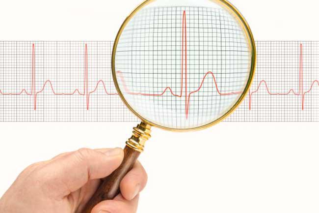 Tim đập nhanh: Trong các trường hợp say nắng, nhịp tim của bạn có thể tăng hoặc giảm đáng kể. Điều này là do nhiệt độ tạo một áp lực lớn lên tim để làm mát cơ thể.