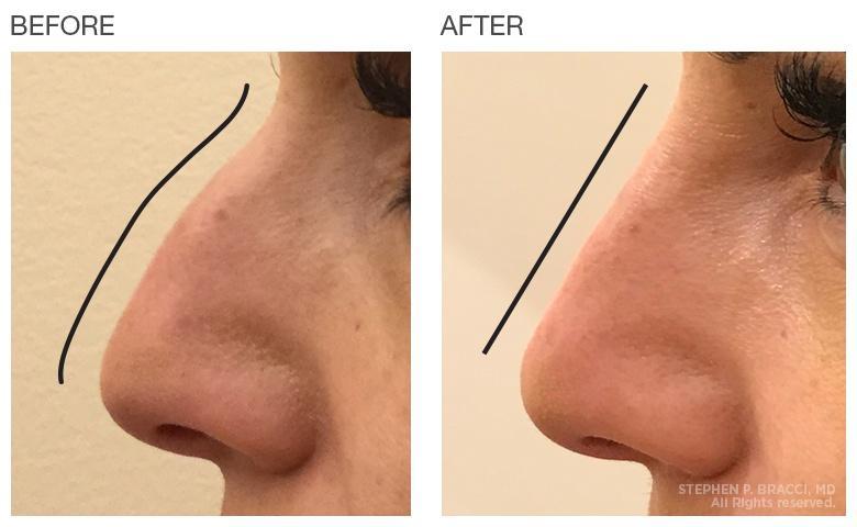 Hình ảnh trước và sau khi tiêm filler.
