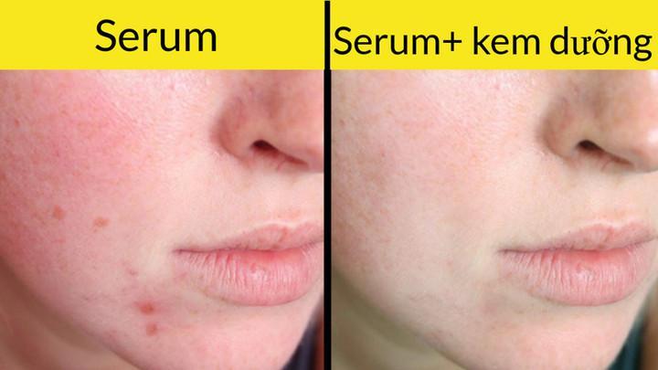 Serum (huyết thanh) nên được sử dụng trước khi bạn dùng kem dưỡng ẩm cho da. Và tốt hơn là nên dùng serum vào buổi tối, đặc biệt khi serum có chứa retinol. Điều này sẽ cho phép da hấp thụ đầy đủ các chất dinh dưỡng cần thiết. Vào mùa Hè, các sản phẩm giàu retinol sẽ làm cho da nhạy cảm với ánh nắng mặt trời và có thể gây ra cháy nắng, do vậy bạn nhất thiết phải sử dụng kem chống nắng.