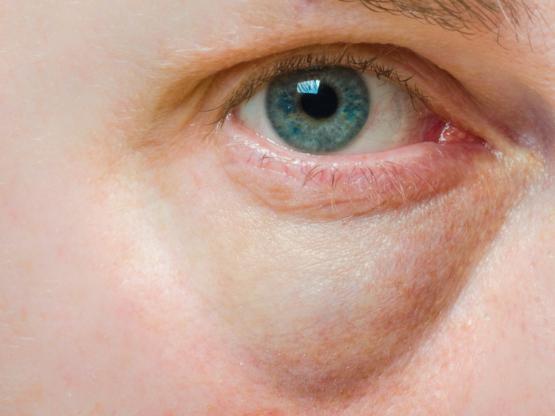 ết cắn sưng tấy bất thường - Sưng tấy ở môi, họng hay mi mắt cũng là dấu hiệu thông thường của sốc mẫn cảm với côn trùng và bạn nên tới bệnh viện để kiểm tra và được chỉ định dùng epinephrine.