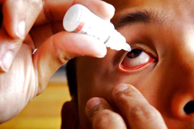 Không tự ý sử dụng thuốc: Nếu bạn bị kích ứng hoặc dị ứng mắt, đừng bao giờ tự ý sử dụng thuốc. Mắt là một bộ phận cực kì nhạy cảm của cơ thể và không bao giờ nên được đem ra để thử nghiệm hoặc xem nhẹ. Dù bạn chỉ bị khô mắt đi chăng nữa, tốt nhất hãy đến gặp bác sĩ để được chỉ định loại thuốc nhỏ mắt phù hợp nhất.