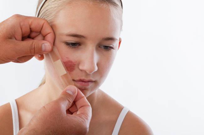 Viêm da: Tinh chất lựu có thể làm dịu da khi da bị viêm nhờ có các polyphenol và các thành phần kháng viêm khác. Các chuyên da chăm sóc sắc đẹp khuyên dùng tinh dầu hạt lựu để điều trị các vết xước nhỏ trên da hoặc để ngăn ngừa sự hình thành sẹo do một vấn đề về da nào đó.
