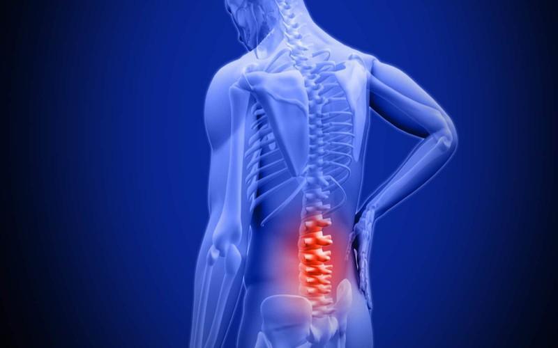 Đau do viêm bao hoạt dịch khớp háng: Viêm bao hoạt dịch khớp háng khá phổ biến do tuổi già và sử dụng khớp quá mức. Khi các túi hoạt dịch khớp háng bị viêm sẽ gây đau hông.