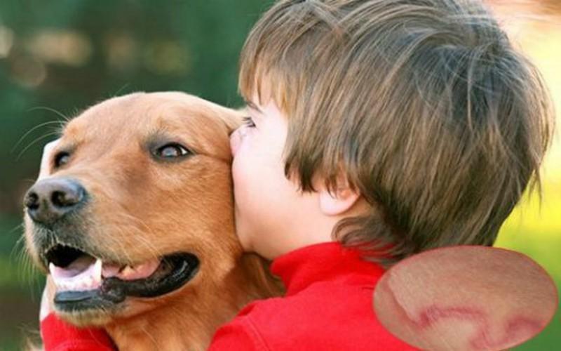 Tránh xa động vật lạ: Nhiễm trùng có thể lây lan từ động vật sang người. Nếu gia đình có vật nuôi, cần đảm bảo chúng được tiêm đầy đủ và kiểm tra sức khỏe thường xuyên.