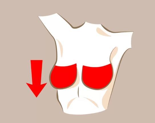 Bầu ngực chảy xệ.  Đây cũng là một hiện tượng dễ gặp trong quá trình lão hóa hoặc sau khi sinh con và cho con bú. Bạn có thể cải thiện bằng cách mặc áo ngực phù hợp, tập thể dục thường xuyên và massage nhẹ nhàng với kem làm săn chắc ngực