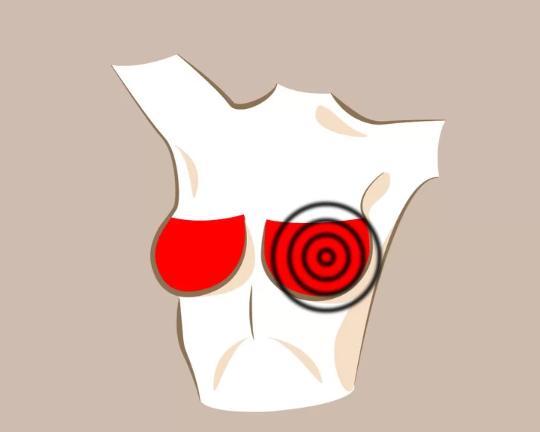 Đau tức một bên ngực  Ung thư mô vú thường không gây đau đớn nhưng ung thư vú thể viêm lại gây đau tức. Nếu thấy cơn đau kéo dài hơn một tuần, bạn nên thăm khám bác sĩ.