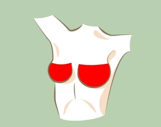 Kích thước hai bên ngực chênh lệch lớn  Thông thường, kích thước hai bên ngực không bao giờ hoàn toàn giống nhau. Tuy nhiên, nếu bạn thấy một bên thay đổi bất thường, tạo nên sự chênh lệch lớn, hãy liên hệ với bác sĩ ngay để được chẩn đoán kịp thời.