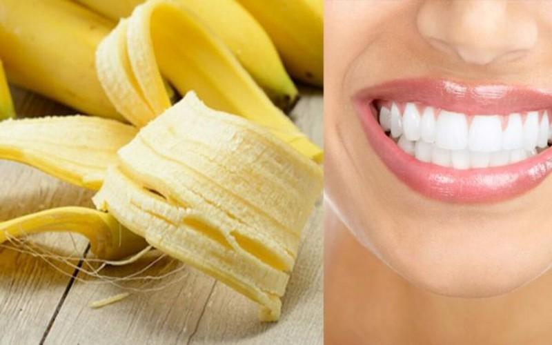 Chăm sóc răng miệng: Mỗi tối trước khi đi ngủ, bạn chà xát vỏ chuối chín lên răng chừng 5 phút rồi súc miệng với nước sạch, những mảng bám ố vàng trên răng sẽ biến mất.