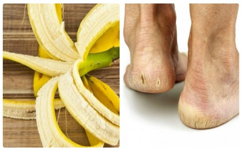 Trị nứt nẻ tay chân: Trong mùa lạnh, nguy cơ khô da, nứt nẻ da tay, chân, gót chân… là rất cao. Bạn có thể rửa sạch tay chân, sau đó chà sát mặt trong của vỏ chuối lên vùng da nứt nẻ. Kết quả thu về là da mềm mịn, hồng hào trở lại sau vài ngày liên tục sát vỏ chuối.