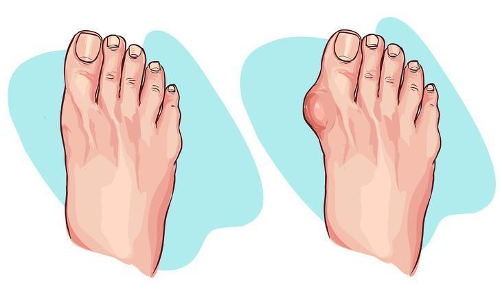 Những tổn thương bàn chân thường gặp: Khi những ngón chân chen chúc trong không gian chật hẹp của đôi giày cao gót, ngón cái có xu hướng nghiêng sang một bên, đồng thời có thế làm xuất hiện vết chai hoặc sưng ở bên cạnh ngón cái. Bạn cũng có thể bị viêm gân Achilles do giày cao gót làm hạn chế chuyển động và sức mạnh của mắt cá chân.