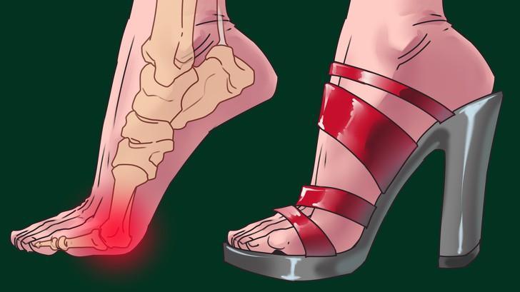 Các dây thần kinh ở bàn chân bị chèn ép, dồn nén sẽ bị dày lên và gây đau đớn. Bạn cũng có thể bị đau, cứng và sưng ở cả phần gót chân.