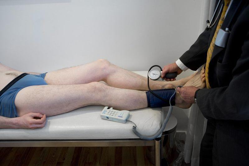Bệnh tắc động mạch ngoại biên (PVD): Đây cũng là một nguyên nhân phổ biến gây lạnh bàn chân. Bệnh này là do tắc động mạch ở các chi, làm ngăn dòng lưu thông máu đến bàn chân, khiến bàn chân bị lạnh.