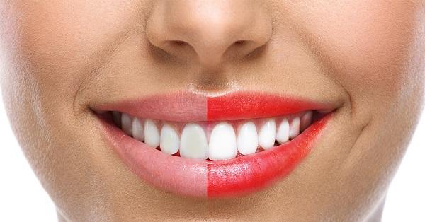 Chọn màu son phù hợp: Chọn son môi màu đỏ với tông lạnh để khiến da bạn trông trắng hơn. Trái lại, những son môi tông cam sẽ làm nổi bật bất kì vết ố vàng nào trên răng bạn.