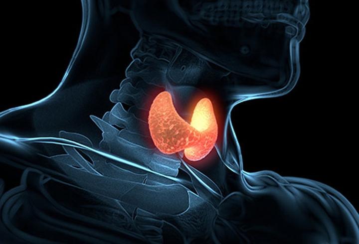 2. Suy tuyến giáp: Suy tuyến giáp là khi tuyến giáp ở cổ bạn không sản sinh đủ lượng hormone cần thiết. Căn bệnh này có thể khiến bạn cực kì nhạy cảm với nhiệt độ thấp. Bạn cũng có thể gặp các triệu chứng như đau khớp, táo bón, khô da và tăng cân.