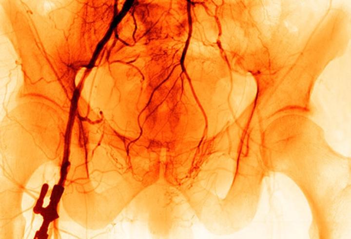 5. Bệnh động mạch ngoại biên: Bệnh này xảy ra khi những mảng xơ vữa làm hẹp động mạch, khiến  chân và tay bạn khó có thể nhận đủ lượng máu cần thiết. Nếu một bên chân cảm thấy lạnh hơn rất nhiều so với bên còn lại, đặc biệt là cảm thấy tê, đau đớn, có thể là một triệu chứng của căn bệnh này.